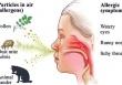 Fexofenadin – Lựa Chọn Đầu Tiên Trong Điều Trị Viêm Mũi Dị Ứng Theo Mùa và Mề Đay Mạn Tính Vô Căn